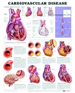 Chart,  Cardiovascular Diseases, (Bachin) 50 x 66cm