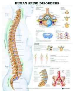 Chart,  Human Spine Disorders, (Bachin) 50 x 66cm