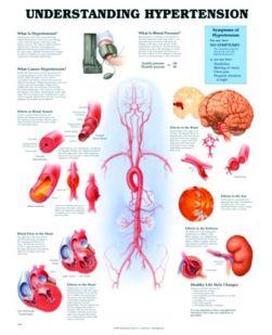 Chart,  Understanding Hypertension, (Bachin) 50 x 66cm