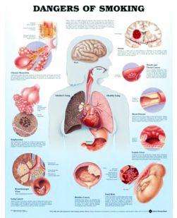 Chart,  Dangers of Smoking, (Bachin) 50 x 66cm