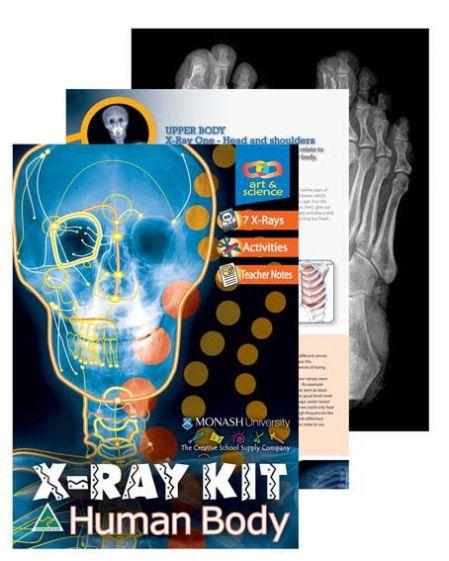 Human Body X-Ray kit