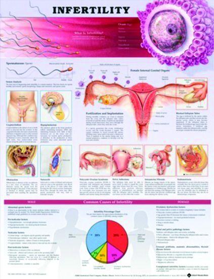 Chart,  Infertility, (Bachin)  50 x 66cm.